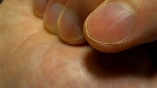 改善した右手人差し指の爪